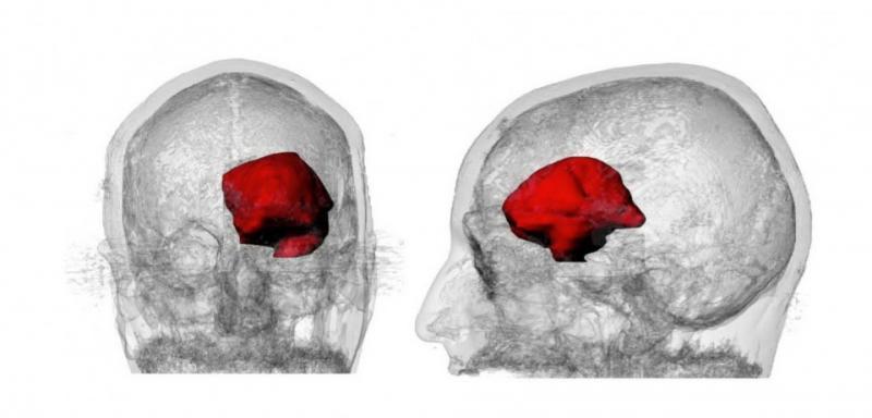 Zdravljenje možganskega tumorja s kanabisom